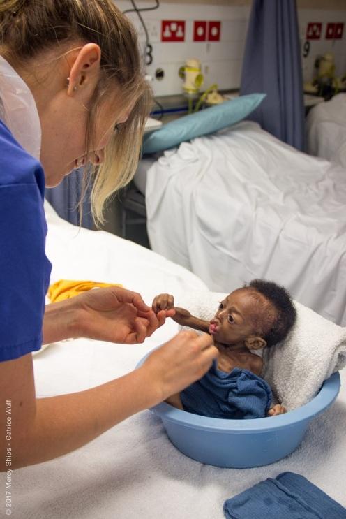 Die meisten Babies mit Lippen-Kiefer-Gaumenspalten können aufgrund fehlendem Zubehör nicht richtig ernährt werden und kommen völlig unterernährt an.