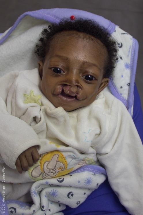 Diese Babies werden dann erstmal mit einem speziellen Ernährungsprogram aufgepäppelt, bevor die Operation durchgeführt werden kann.